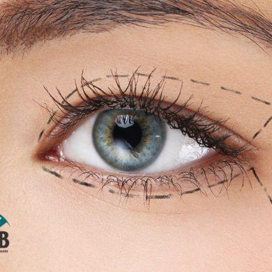 Plástica Ocular – Blefaroplastia