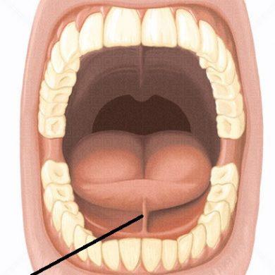 Frenotomia Lingual