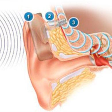 Prótese implantável de condução óssea