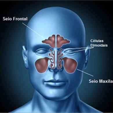 Cirurgia Funcional dos Seios Paranasais