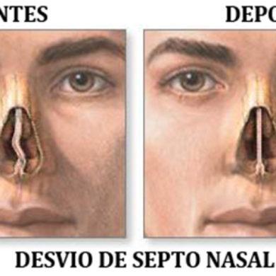 Septoplastia