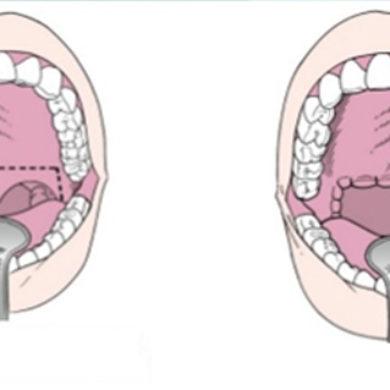 Uvulopalatoplastia