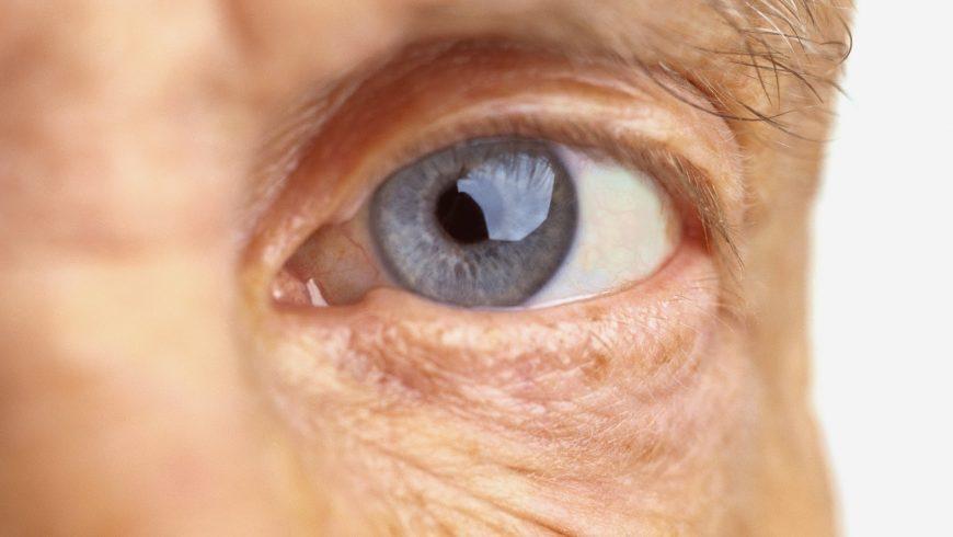 Catarata: como evitar a cegueira e perda de visão