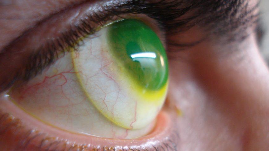 Ceratocone: Saiba mais sobre a doença que deixa os olhos pontiagudos
