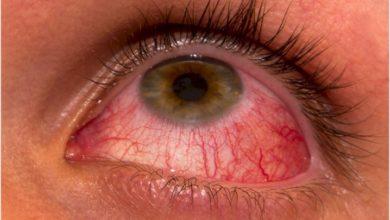 Ceratite microbiana: doença ocular que pode levar à cegueira