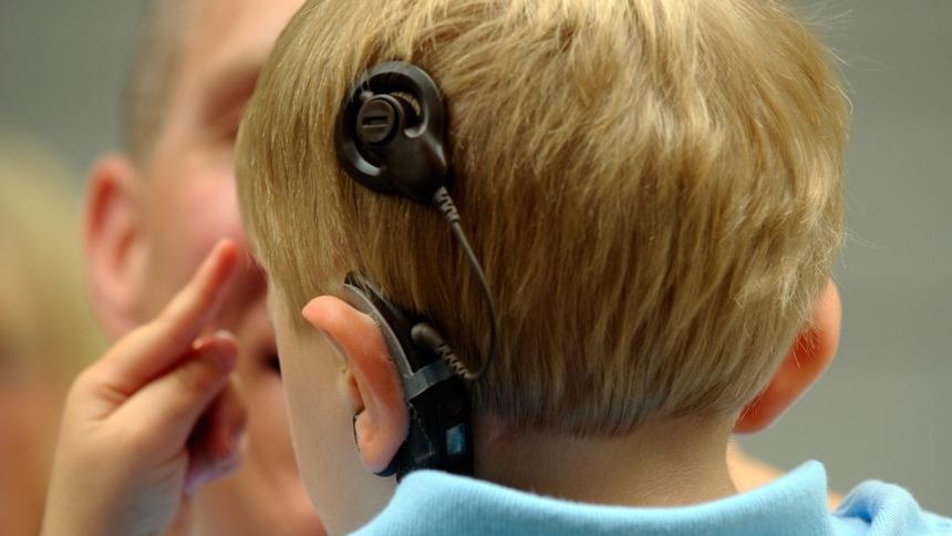 Qual a diferença entre o Implante Coclear e os aparelhos auditivos convencionais?