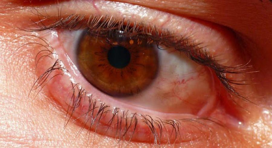 Falta de controle do diabetes pode levar à cegueira