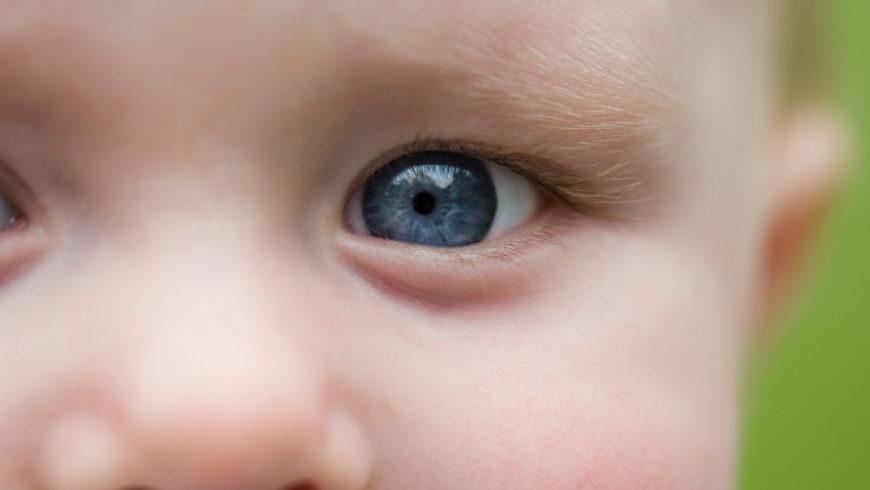 Glaucoma congênito: cuidados que evitam a cegueira irreversível