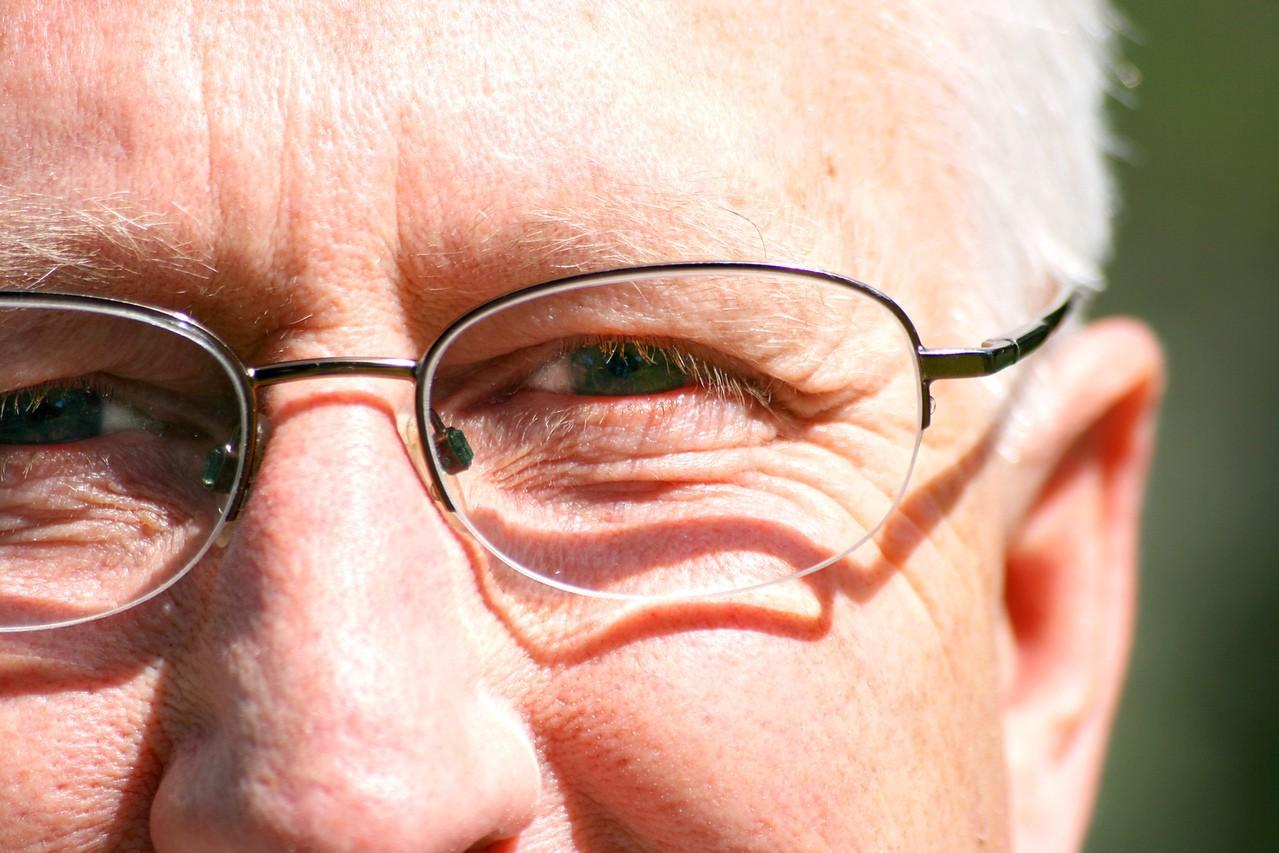 Pessoas com mais de 40 anos podem fazer a cirurgia para diminuição do grau de miopia?