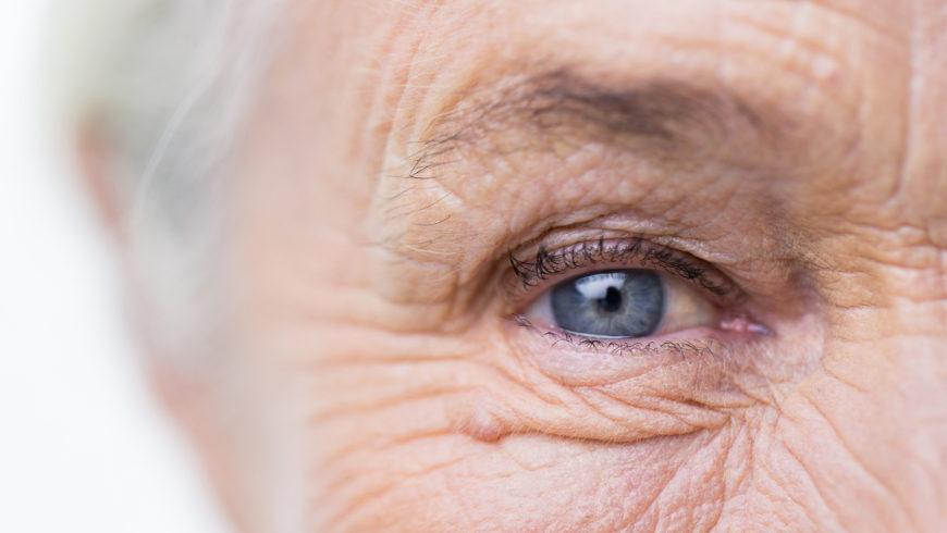 Como minimizar a perda visual por catarata em um olho