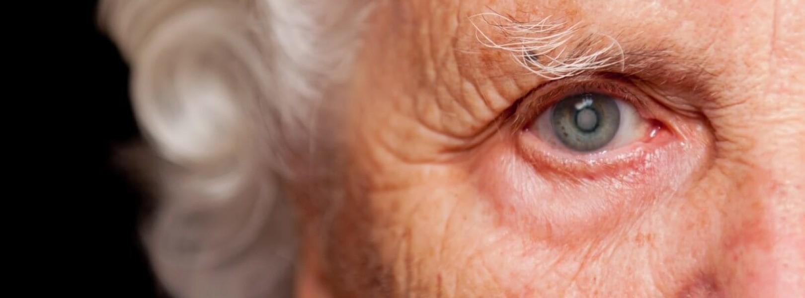 Como a cirurgia de catarata recupera a visão