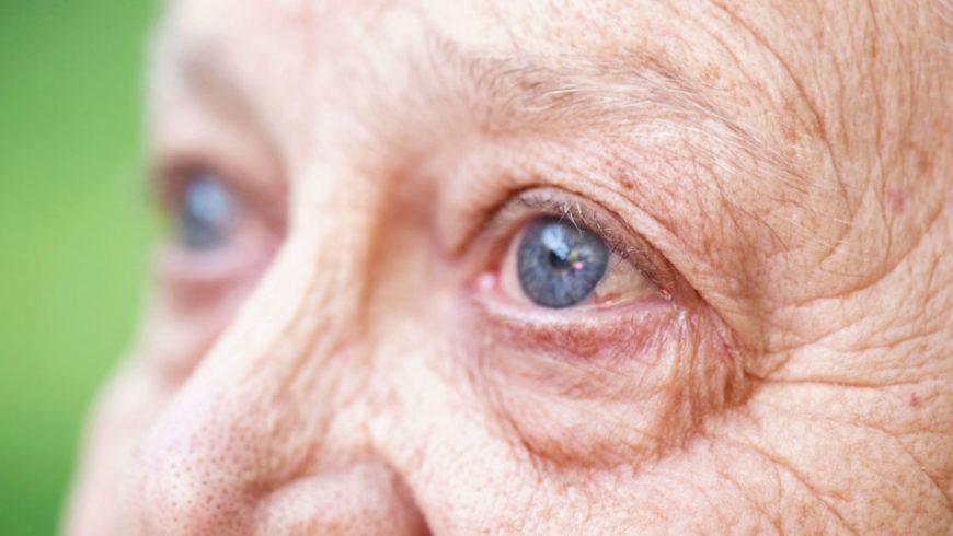Degeneração Macular Relacionada à Idade: o que é importante saber