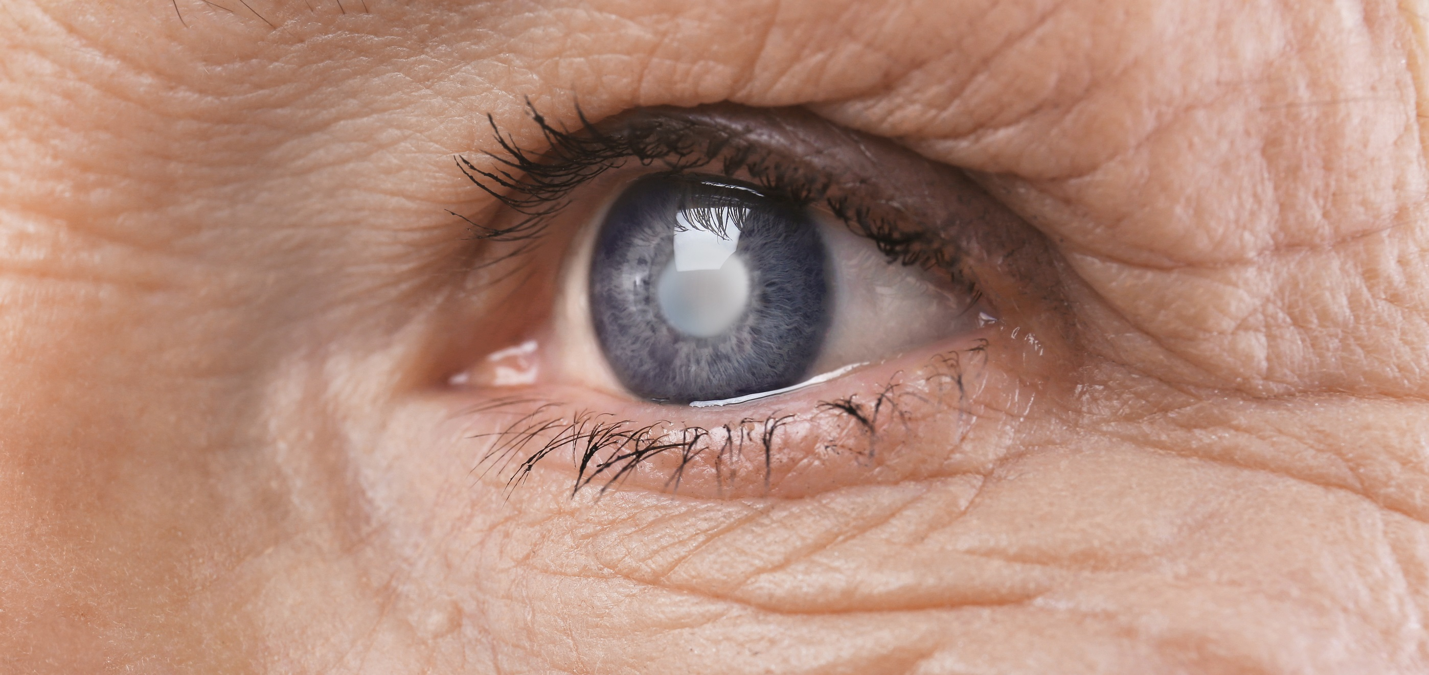 Como é feito o diagnóstico do Glaucoma?