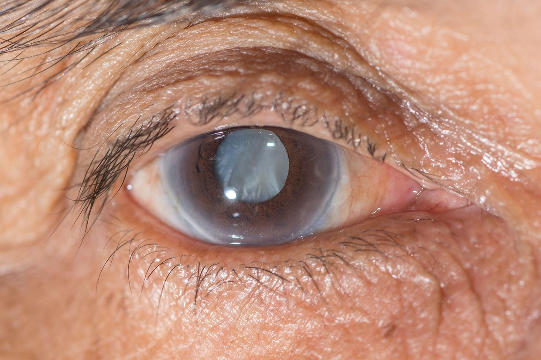 Quando o glaucoma vem como consequência de outra doença
