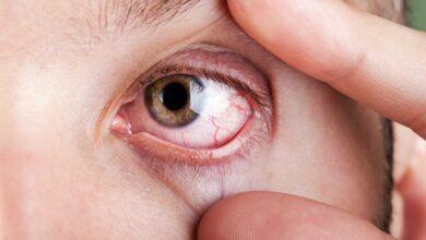 10 dicas úteis para evitar a alergia ocular