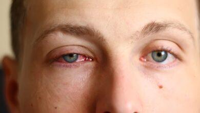 Alergias oculares: a prevenção com base no tratamento